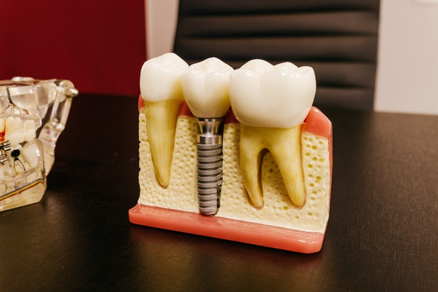 День зубного техника